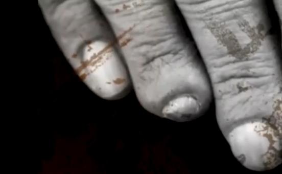 Tony Iommi sérült ujjai